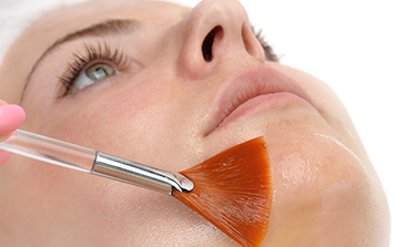 Superficial Chemical Peels