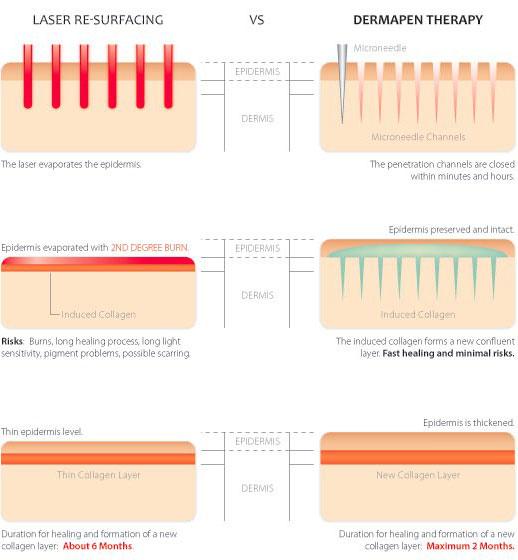 laser-vs-dermapen