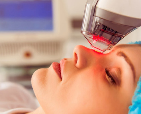 Fractional Skin Resurfacing Treatment