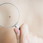 skin-cancer-itch